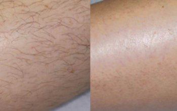 До и после лечения на диодном лазере
