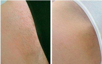 До и после лечения на лазере