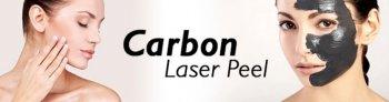 Карбоновая терапия кожи неодимовым лазером