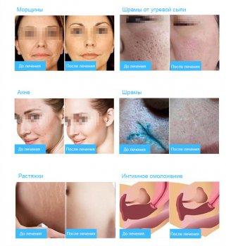 Основные эффекты воздействия фракционного СО2 лазера на кожу