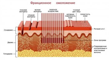 Принцип работы фракционного лазера СО2